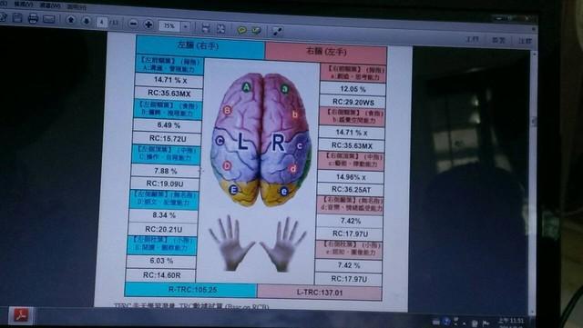 2014.08.02皮紋檢測